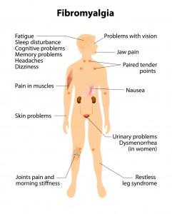 fibromyalgia.